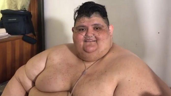 Mexicano más obeso del mundo le gana la batalla al Covid-19